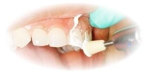 Informeaza-te despre Profilaxia dentara-mai bine previi decat sa tratezi