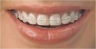 Informeaza-te despre Aparatul ortodontic fix