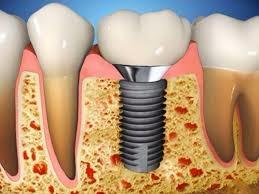 Informeaza-te despre Implantul dentar in Timisoara