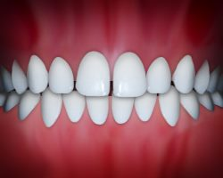 Informeaza-te despre Ortodontie- Aparat dentar