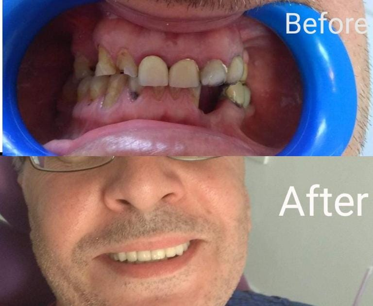 Servicii stomatologie pentru Dr. Daniela Negru
