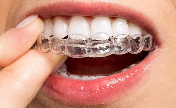 Servicii stomatologie pentru RELIGNER - gutiere ortodontice transparente