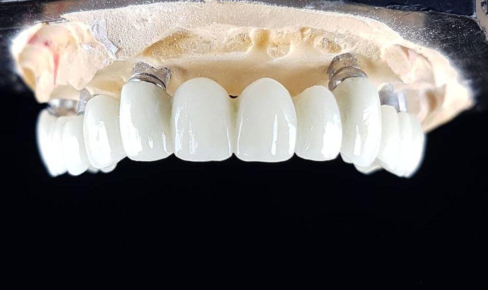 Servicii stomatologie pentru Rideo Dent