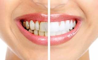 parodontoza inainte si dupa tratament