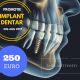Oferta inteligenta - implant dentar 250 euro