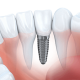 15% reducere Implant Dentar