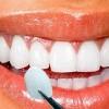 Fatetele dentare detalii