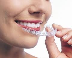 Aparate Ortodontice poza 0