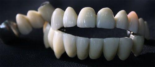 Cabinet de tehnica dentara Bindiu Alexandru poza 3
