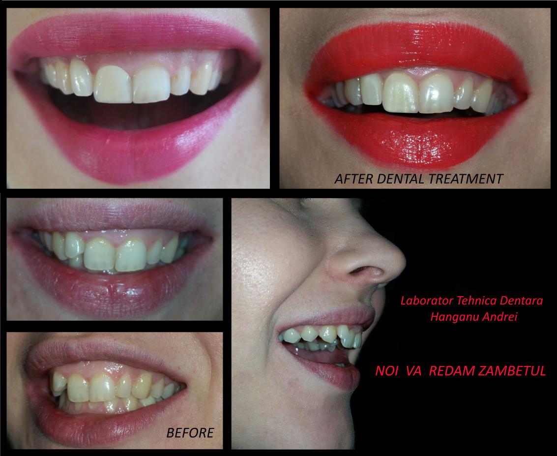 tehnician dentar cu vedere slabă)