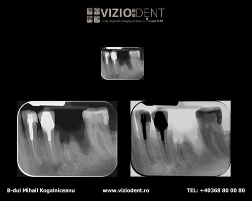VIZIODENT-x-ray diagnostic imaging services poza 8