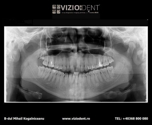 VIZIODENT-x-ray diagnostic imaging services poza 2