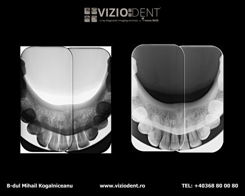 VIZIODENT-x-ray diagnostic imaging services poza 7