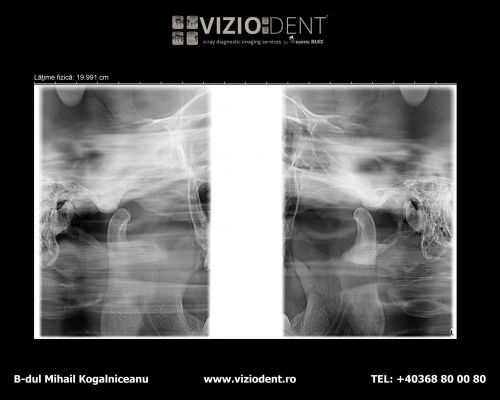 VIZIODENT-x-ray diagnostic imaging services poza 5