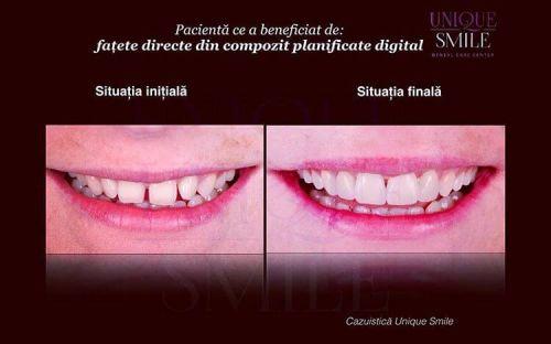 Centrul de Ingrijire Dentara Unique Smile poza 6