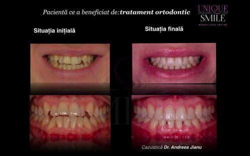Centrul de Ingrijire Dentara Unique Smile poza 7