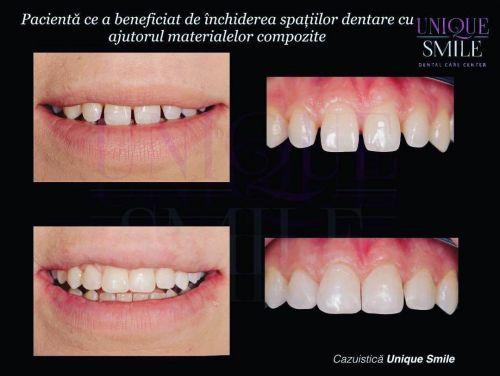 Centrul de Ingrijire Dentara Unique Smile poza 8