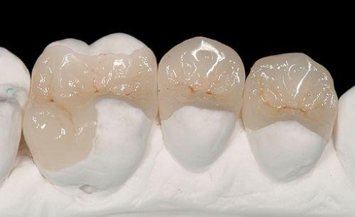 Laborator LLL Dental poza 3