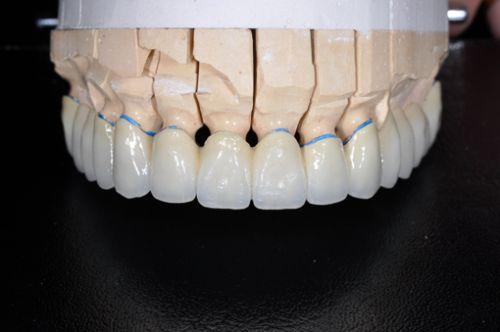 Laborator LLL Dental poza 7