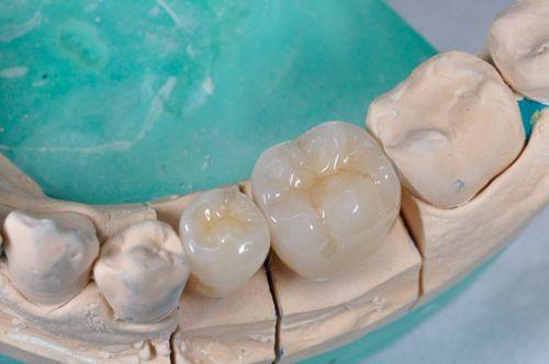 Laborator LLL Dental poza 5