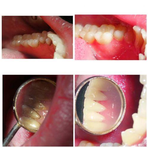 Csiszer Ana Maria Francisca Medic Dentist poza 4