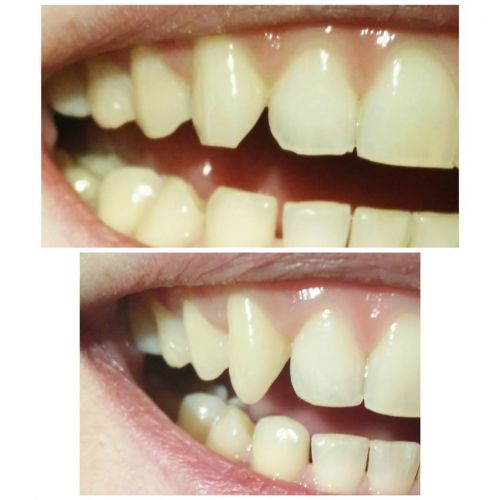 Csiszer Ana Maria Francisca Medic Dentist poza 5