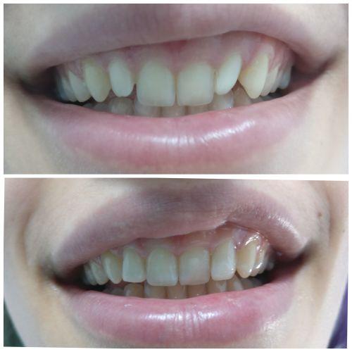 Csiszer Ana Maria Francisca Medic Dentist poza 12