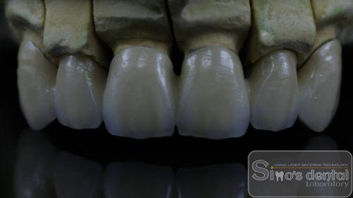 Simo's Dental Limited SRL poza 4