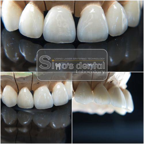 Simo's Dental Limited SRL poza 9
