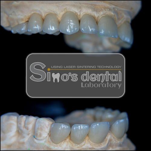Simo's Dental Limited SRL poza 10