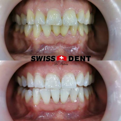 Clinica Dr. Petriu - SWISSDENT poza 12