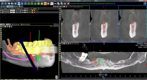 Dr.Cristian Gheorghiu - medic dentist implantolog poza 1