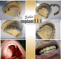 ImplantFix - Dr. Ilie-Dan Sabin poza 3