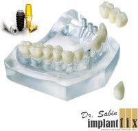 ImplantFix - Dr. Ilie-Dan Sabin poza 2