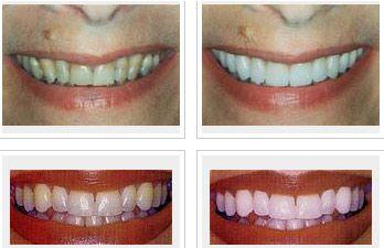 DentaCare poza 2