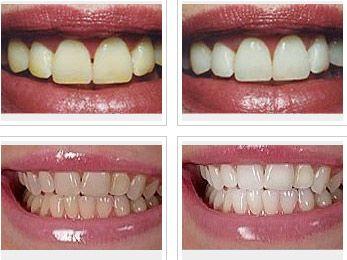DentaCare poza 3