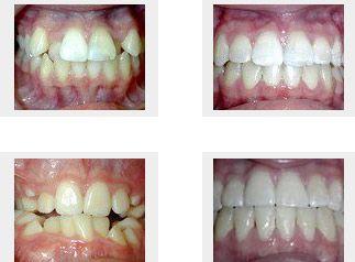 DentaCare poza 5