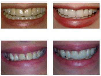 DentaCare poza 6