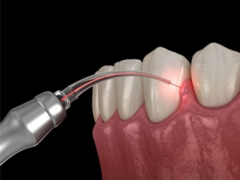 Tratamentul parodontozei cu laser