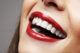 Imagine In Luna Martie LLL Dental Sarbatoreste Femeia