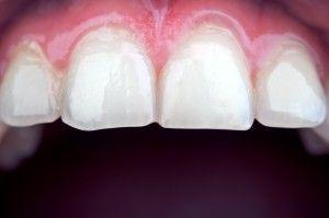 Fatete Dentare - Solutia Pentru Zambetul Mult Dorit
