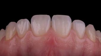 Tratament garantat Parodontologie/Implantologie