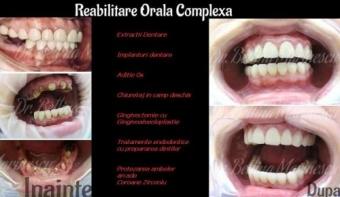 Chirurgie dento-alveolara/ Parodontologie / Implantologie!
