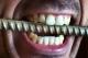 Cum se procedeaza in cazul unei urgente dentare?