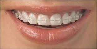 Ortodontia,aparatul fix