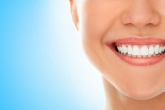 intretinere aparat dentar