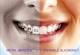 Ortodontia digitala :Tehnica CLEAR ALIGNER- corectarea pozitiei dintilor cu alignere invizibile