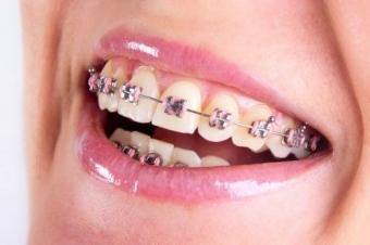 Aparate ortodontice pentru adulti