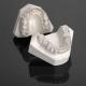 Ce este contentia ortodontica