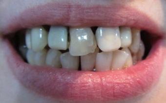 Imagine Simptomele disfunctiei aparatului dento-maxilar